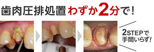 圧排 歯肉 歯科材料通販フィード|歯肉圧排材の通販(11件)
